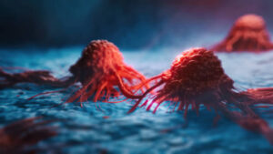تقليل مخاطر الإصابة بالسرطان بشكل طبيعي: 22 خيار طبيعي لتعزيز المناعة ومحاربة السرطان
